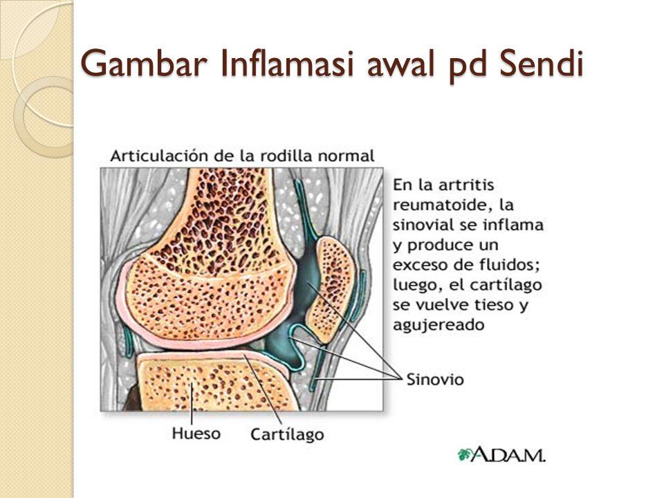 Gambar Inflamasi awal pd Sendi