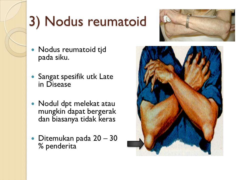 3) Nodus reumatoid Nodus reumatoid tjd pada siku.
