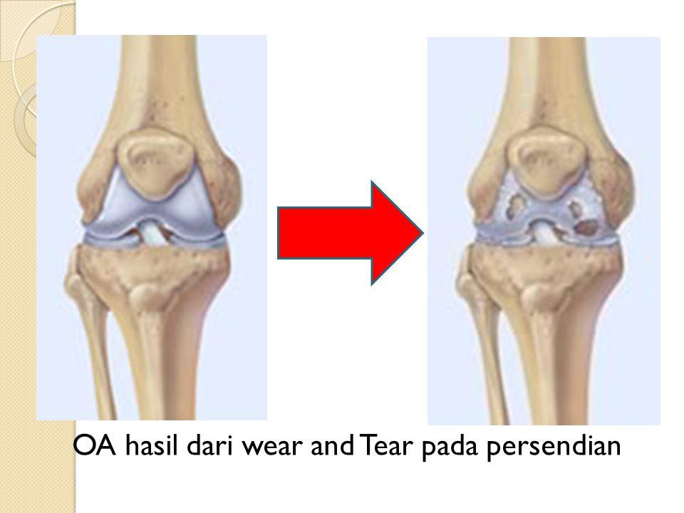 OA hasil dari wear and Tear pada persendian