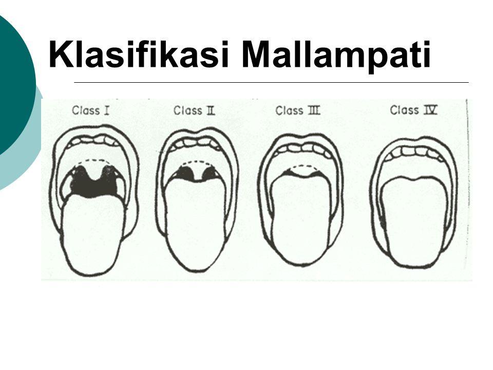 Klasifikasi Mallampati