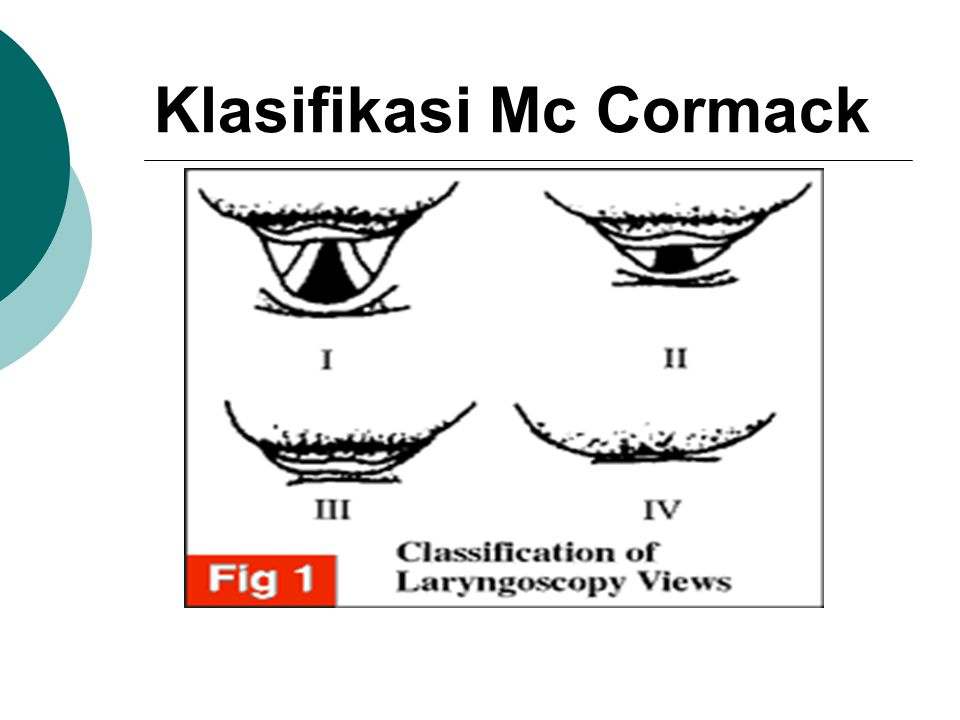 Klasifikasi Mc Cormack