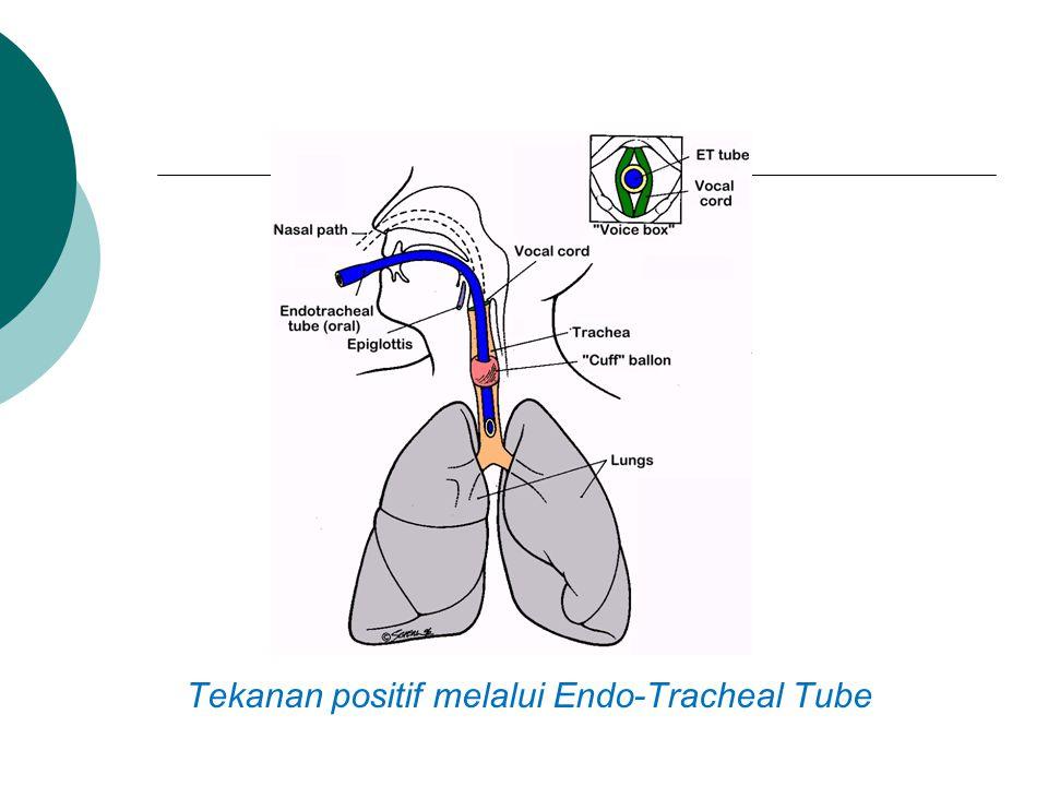 Tekanan positif melalui Endo-Tracheal Tube