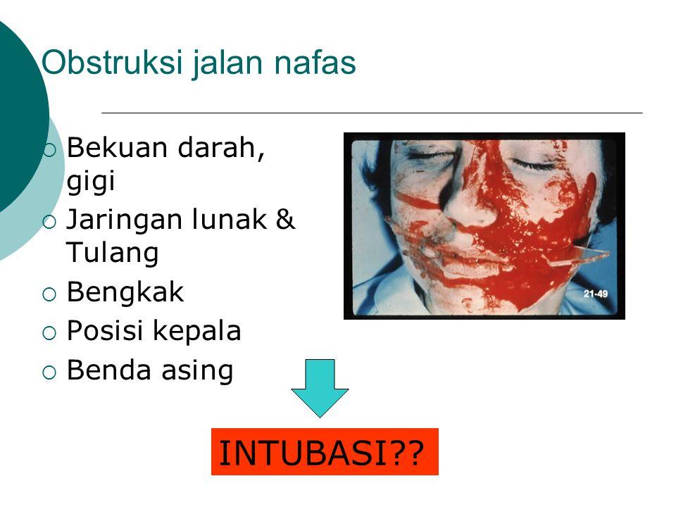 Obstruksi jalan nafas INTUBASI Bekuan darah, gigi