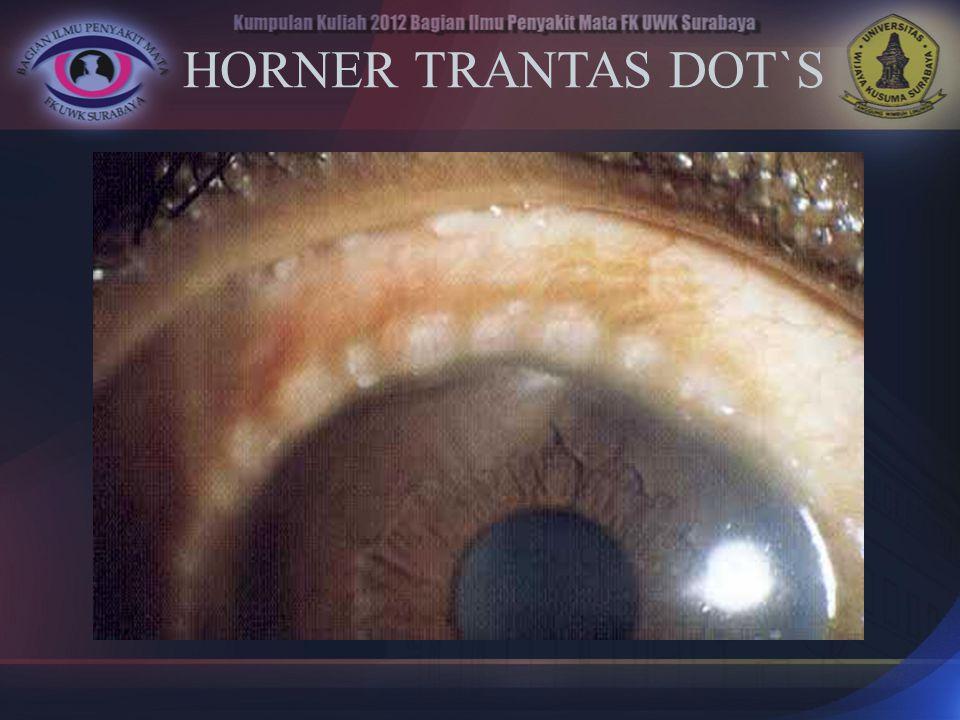 HORNER TRANTAS DOT`S