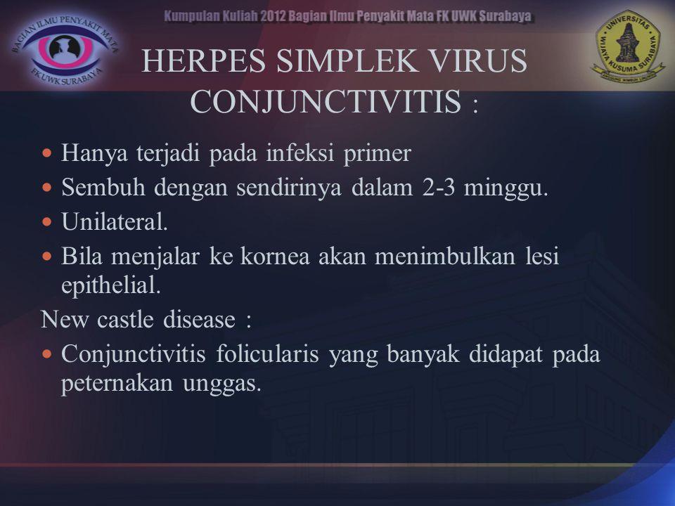 HERPES SIMPLEK VIRUS CONJUNCTIVITIS :