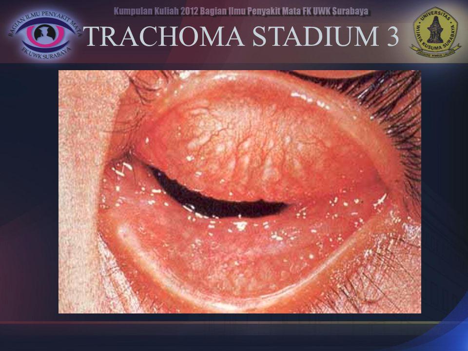 TRACHOMA STADIUM 3