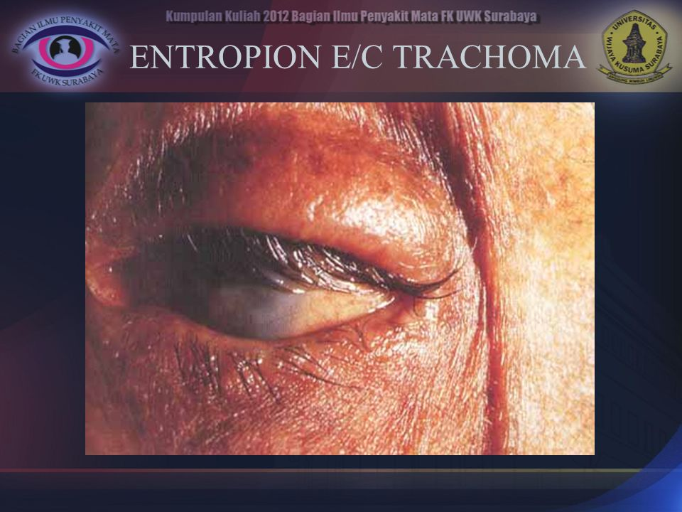 ENTROPION E/C TRACHOMA
