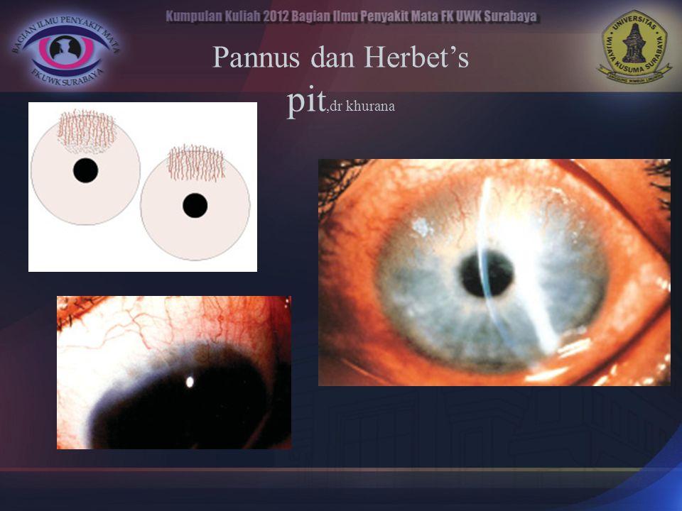 Pannus dan Herbet's pit,dr khurana