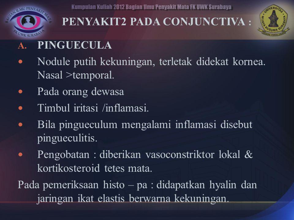 PENYAKIT2 PADA CONJUNCTIVA :