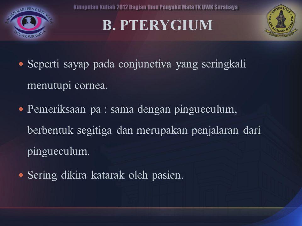 B. PTERYGIUM Seperti sayap pada conjunctiva yang seringkali menutupi cornea.