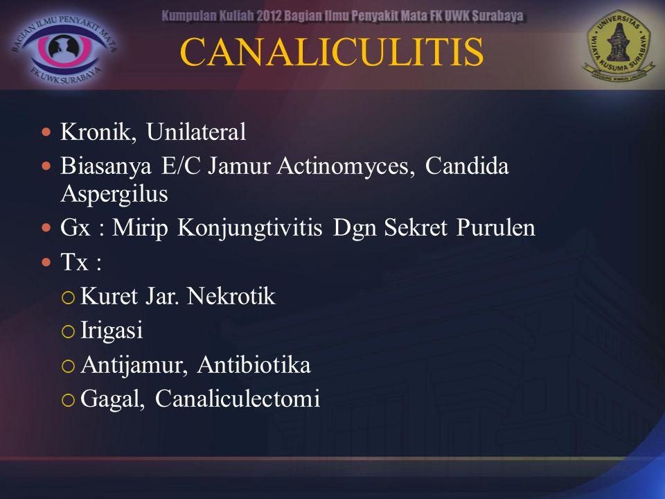 CANALICULITIS Kronik, Unilateral