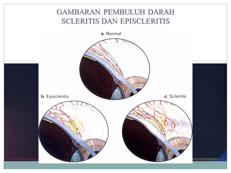 GAMBARAN PEMBULUH DARAH SCLERITIS DAN EPISCLERITIS