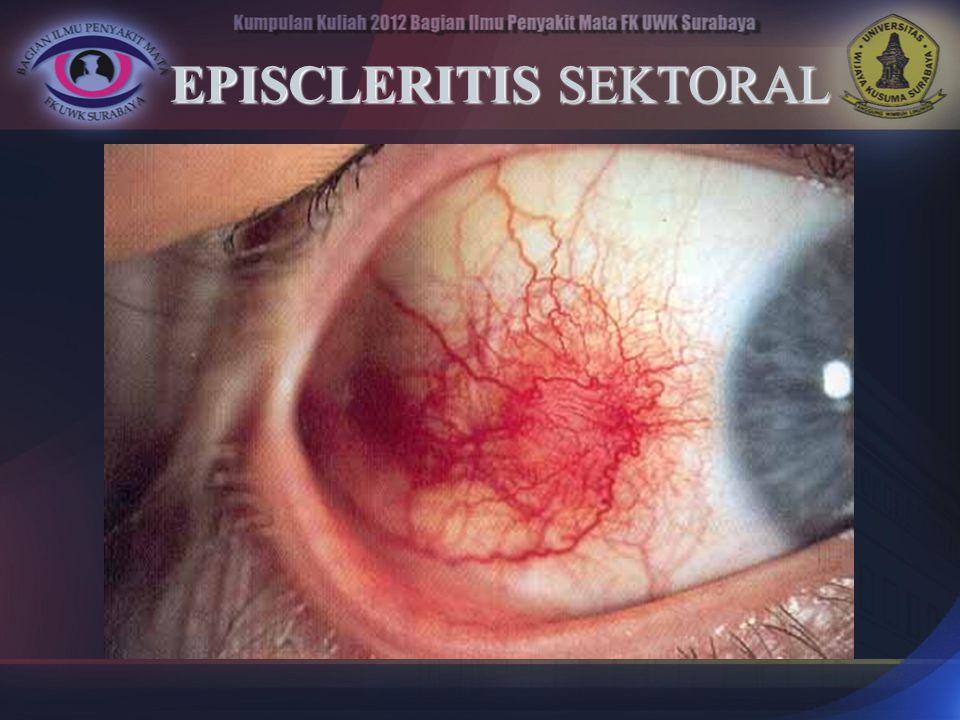 EPISCLERITIS SEKTORAL
