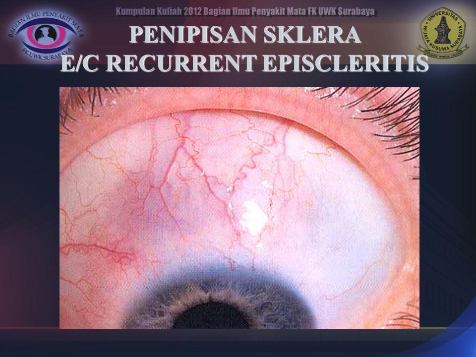 PENIPISAN SKLERA E/C RECURRENT EPISCLERITIS