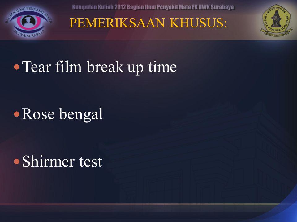PEMERIKSAAN KHUSUS: Tear film break up time Rose bengal Shirmer test