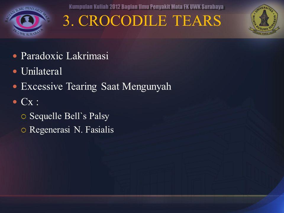3. CROCODILE TEARS Paradoxic Lakrimasi Unilateral