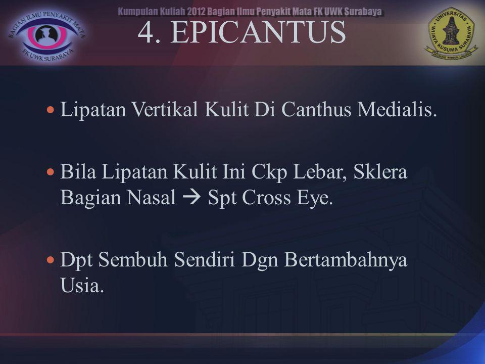 4. EPICANTUS Lipatan Vertikal Kulit Di Canthus Medialis.