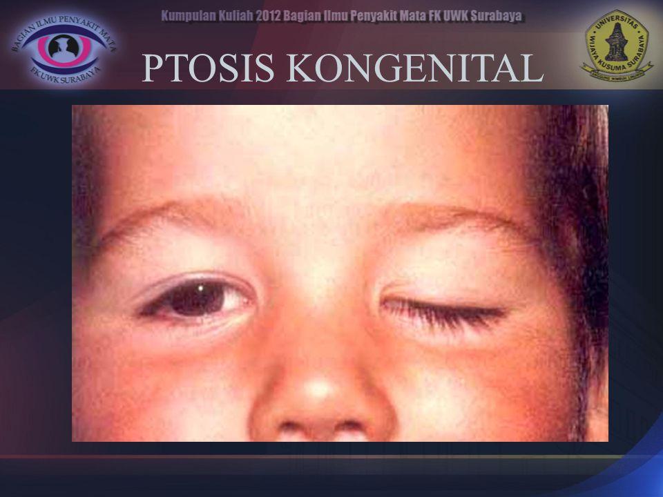 PTOSIS KONGENITAL