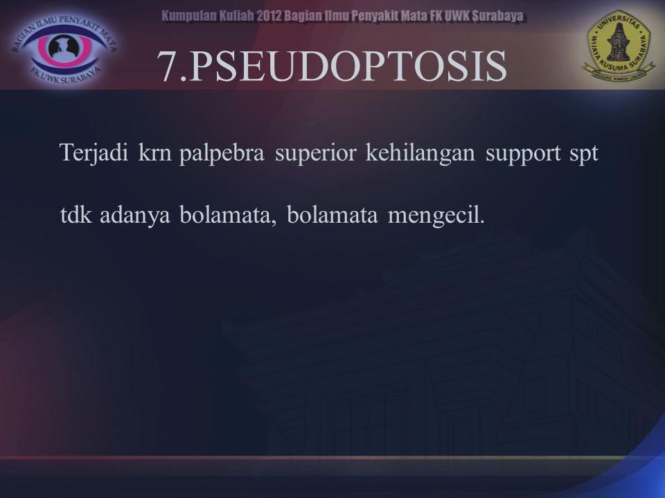 7.PSEUDOPTOSIS Terjadi krn palpebra superior kehilangan support spt tdk adanya bolamata, bolamata mengecil.