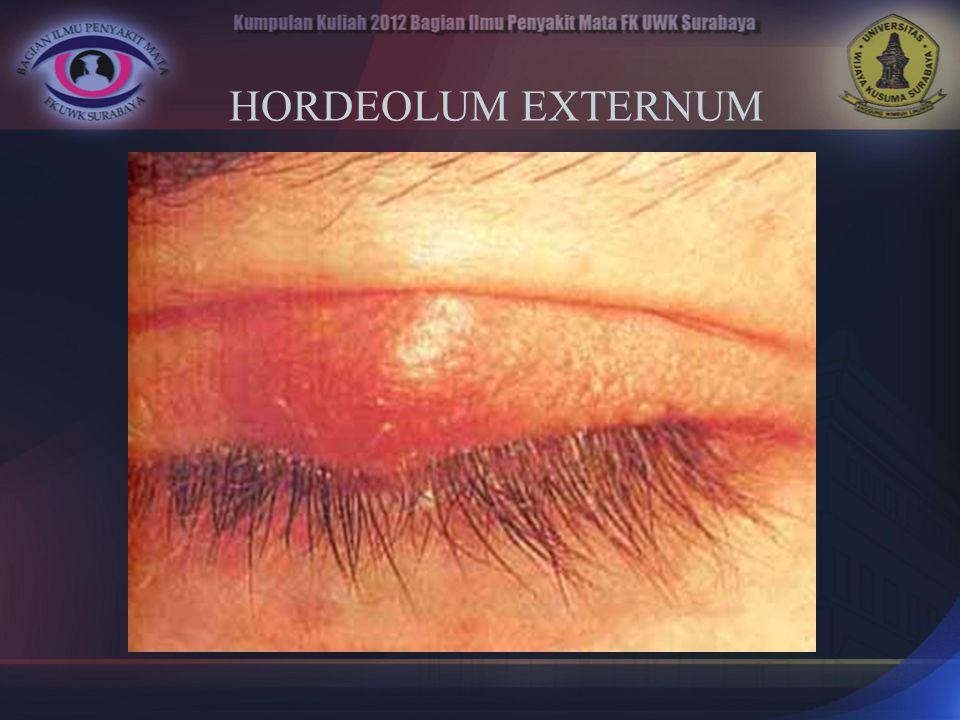 HORDEOLUM EXTERNUM