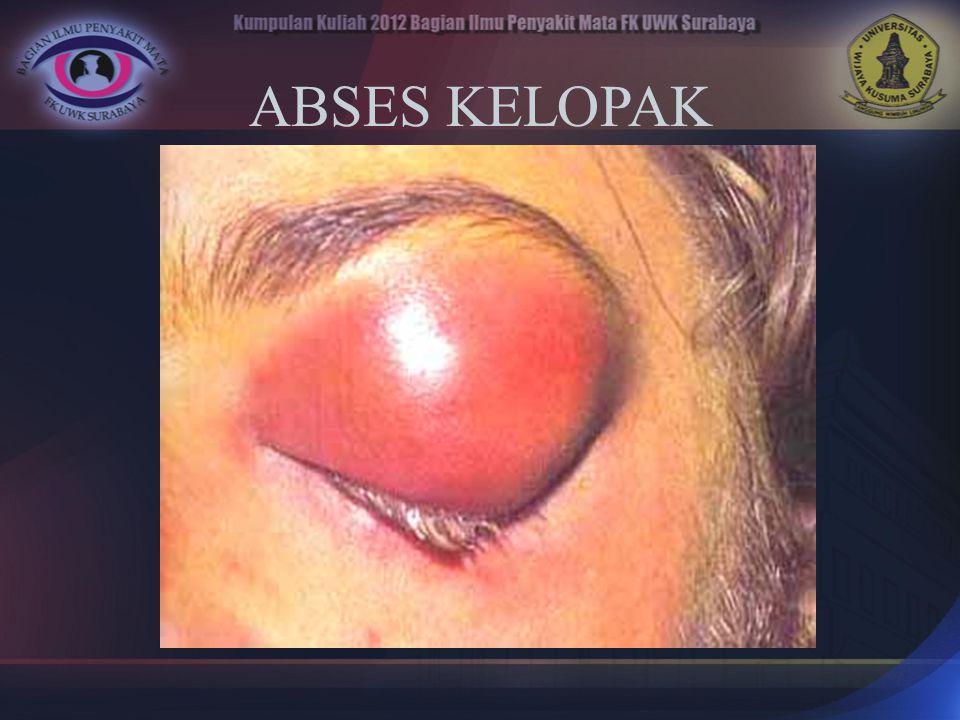 ABSES KELOPAK