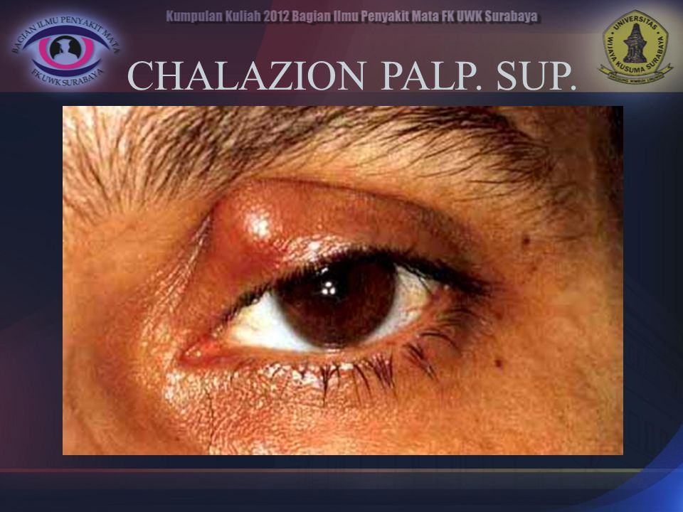 CHALAZION PALP. SUP.