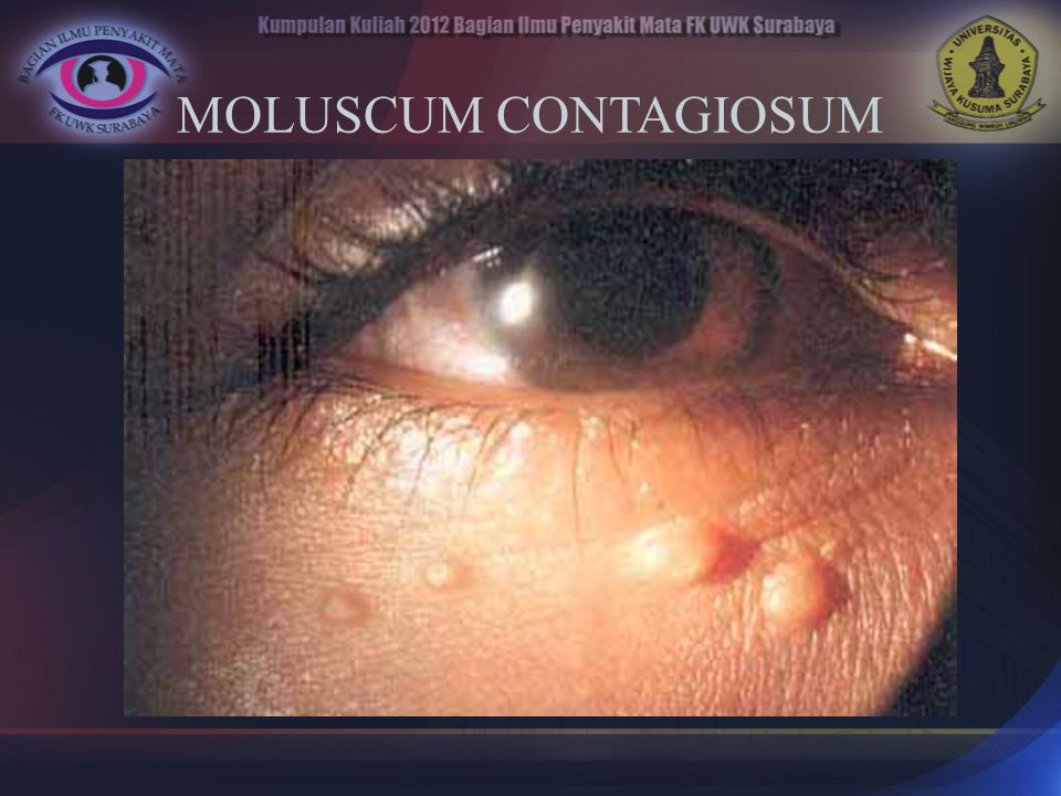 MOLUSCUM CONTAGIOSUM