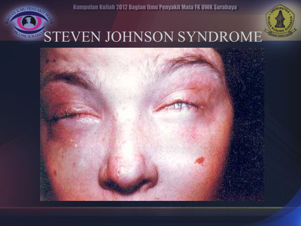 STEVEN JOHNSON SYNDROME