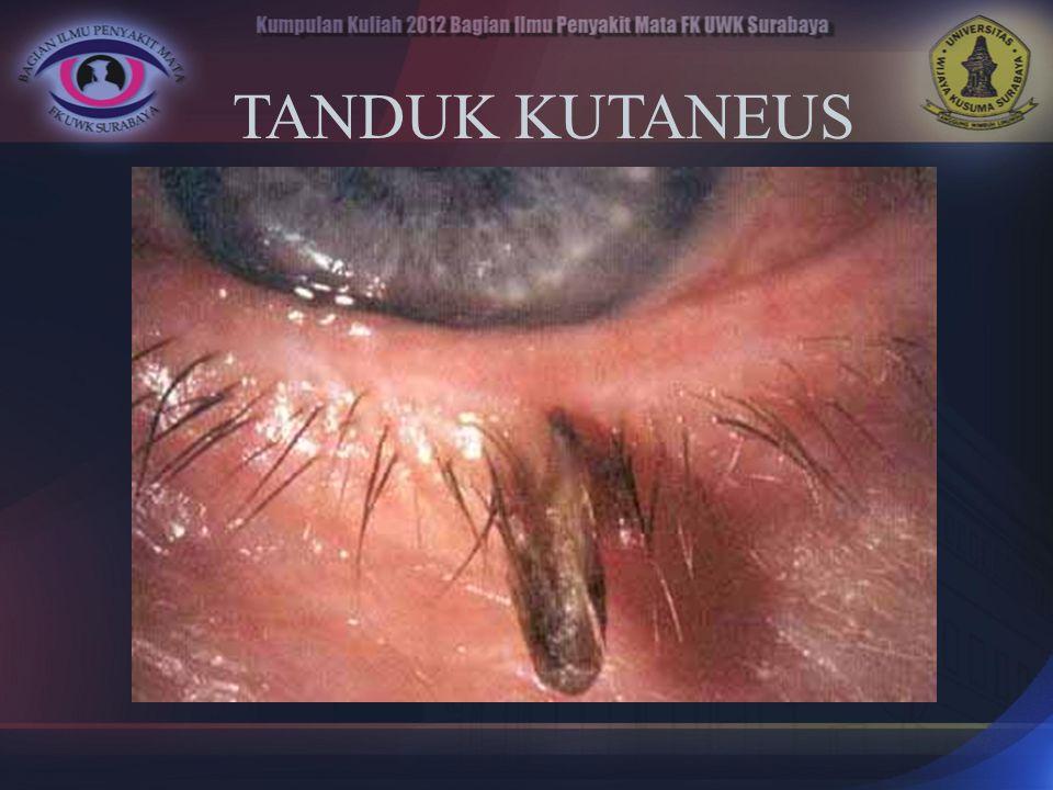 TANDUK KUTANEUS