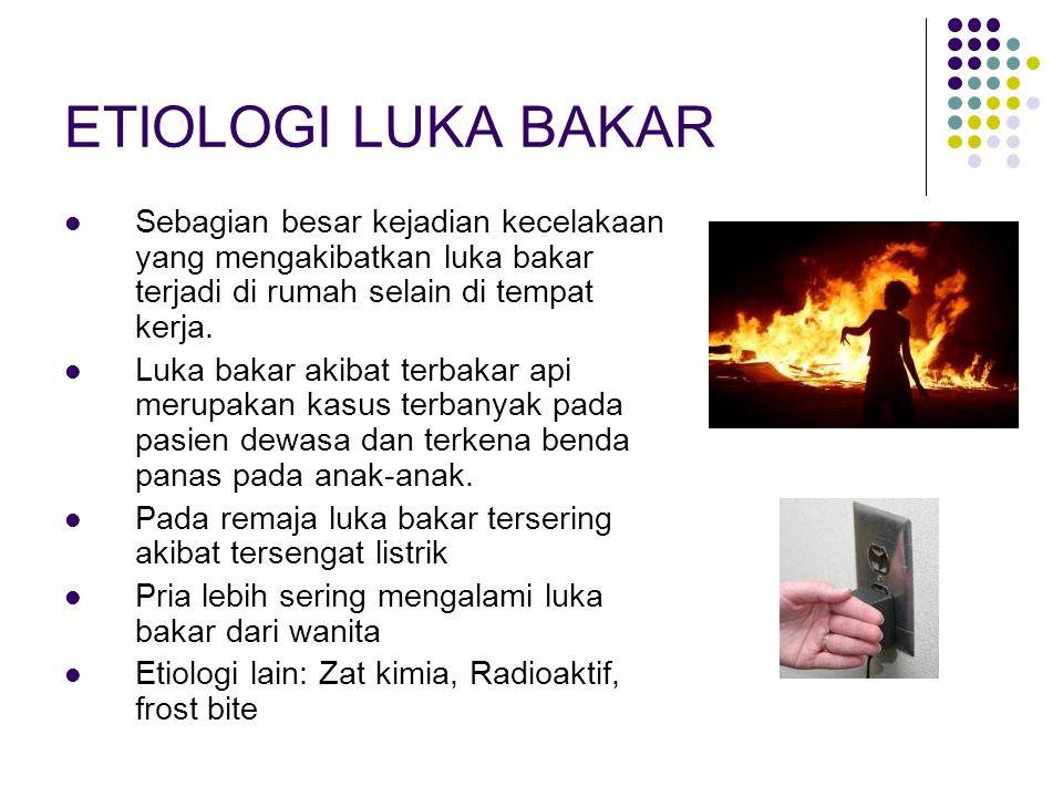 ETIOLOGI LUKA BAKAR Sebagian besar kejadian kecelakaan yang mengakibatkan luka bakar terjadi di rumah selain di tempat kerja.