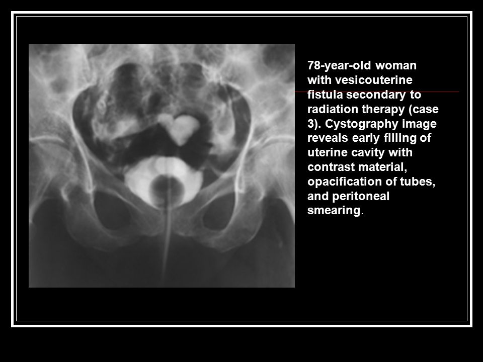 78-year-old woman with vesicouterine fistula secondary to radiation therapy (case 3).