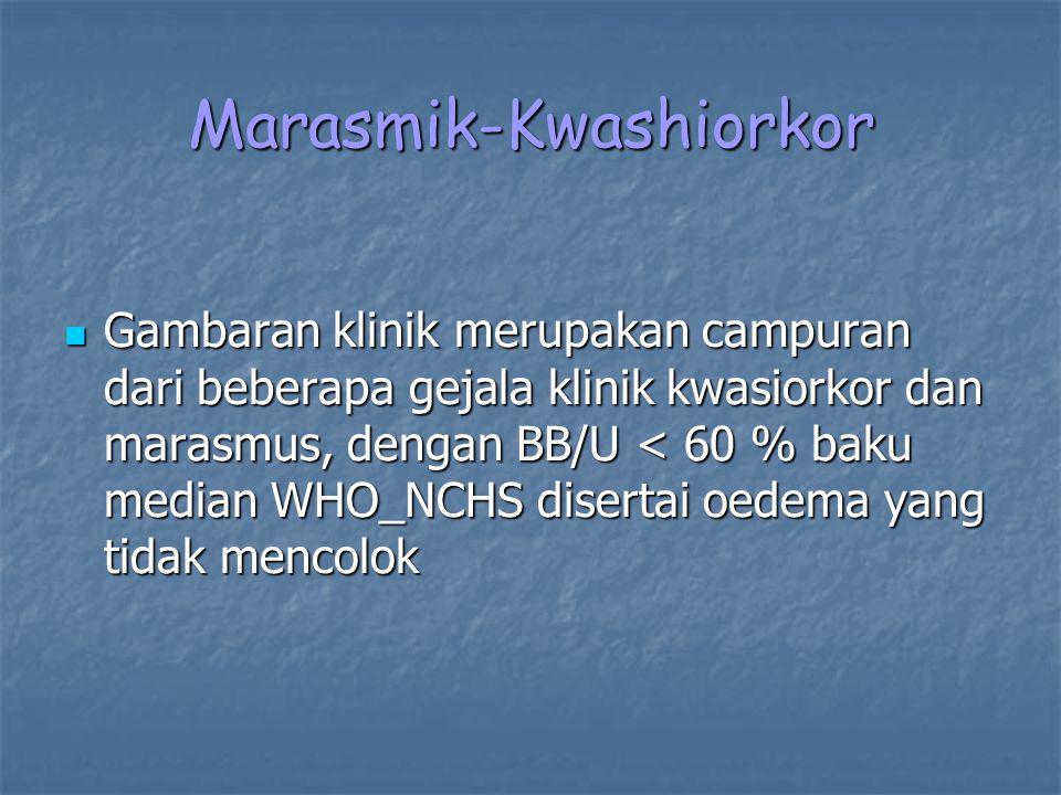 Marasmik-Kwashiorkor
