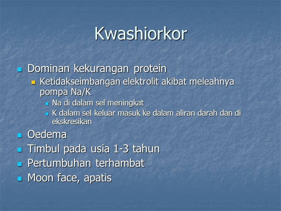 Kwashiorkor Dominan kekurangan protein Oedema