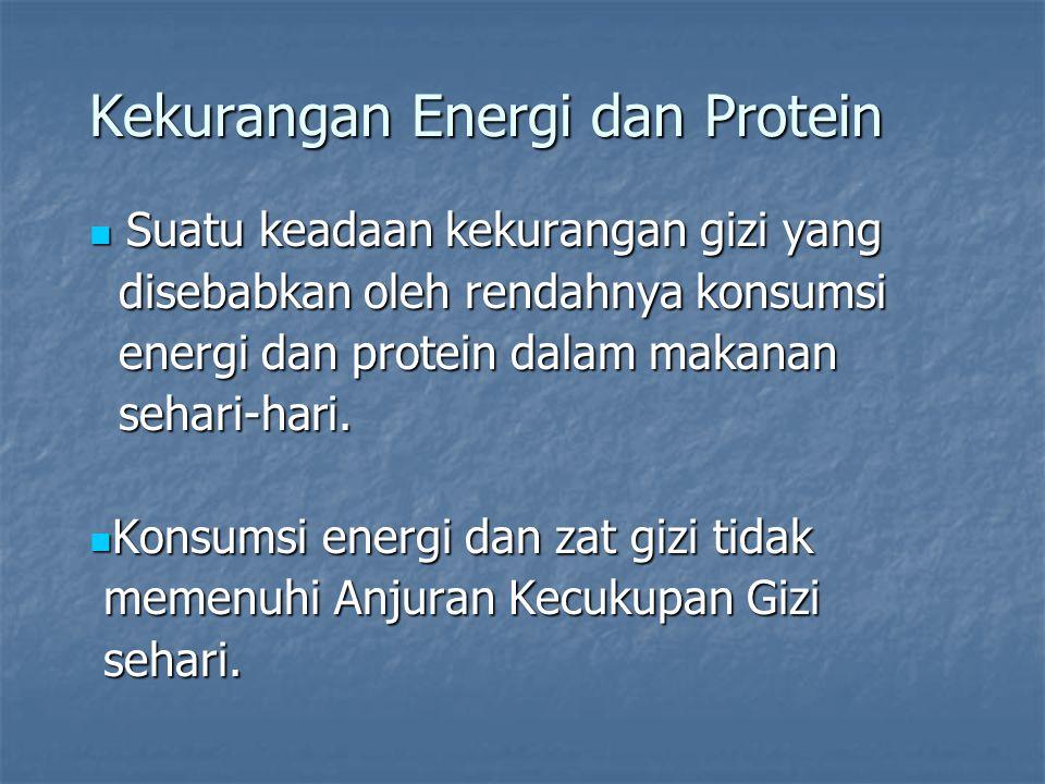 Kekurangan Energi dan Protein