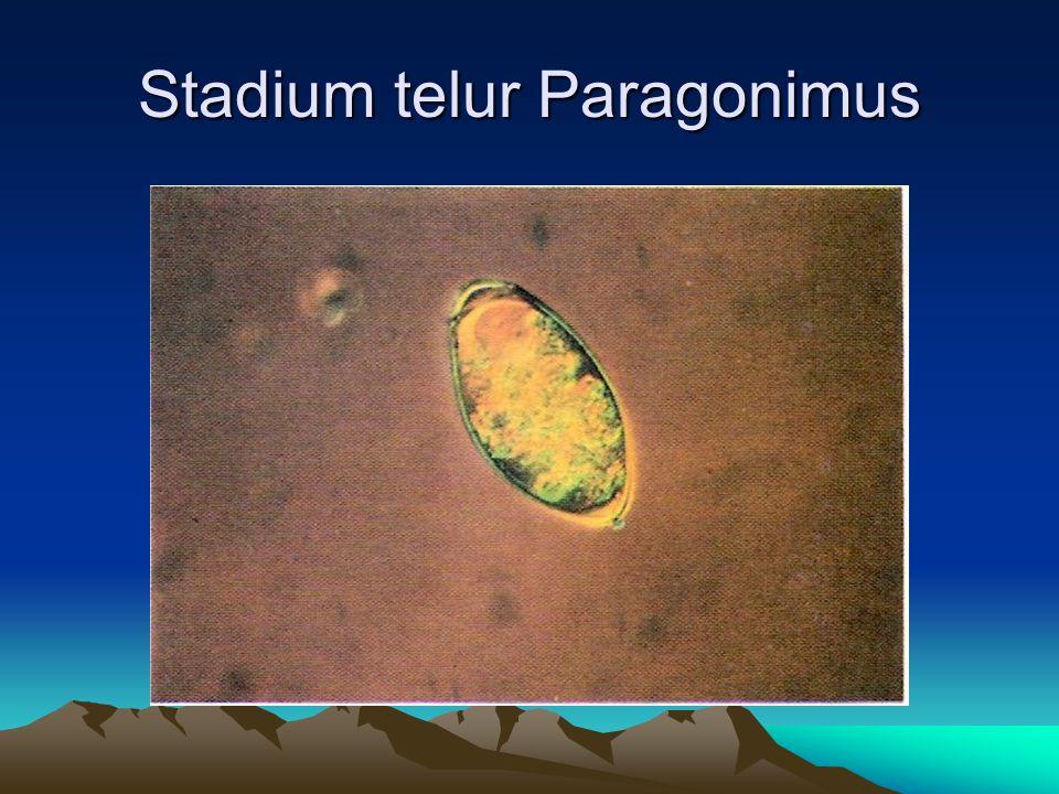 Stadium telur Paragonimus