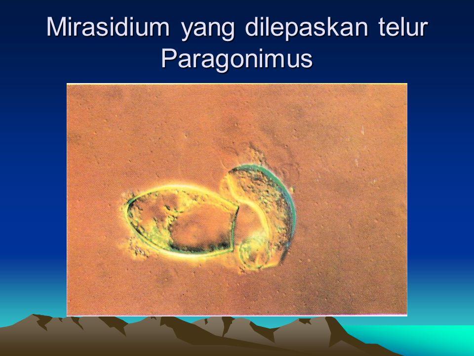 Mirasidium yang dilepaskan telur Paragonimus