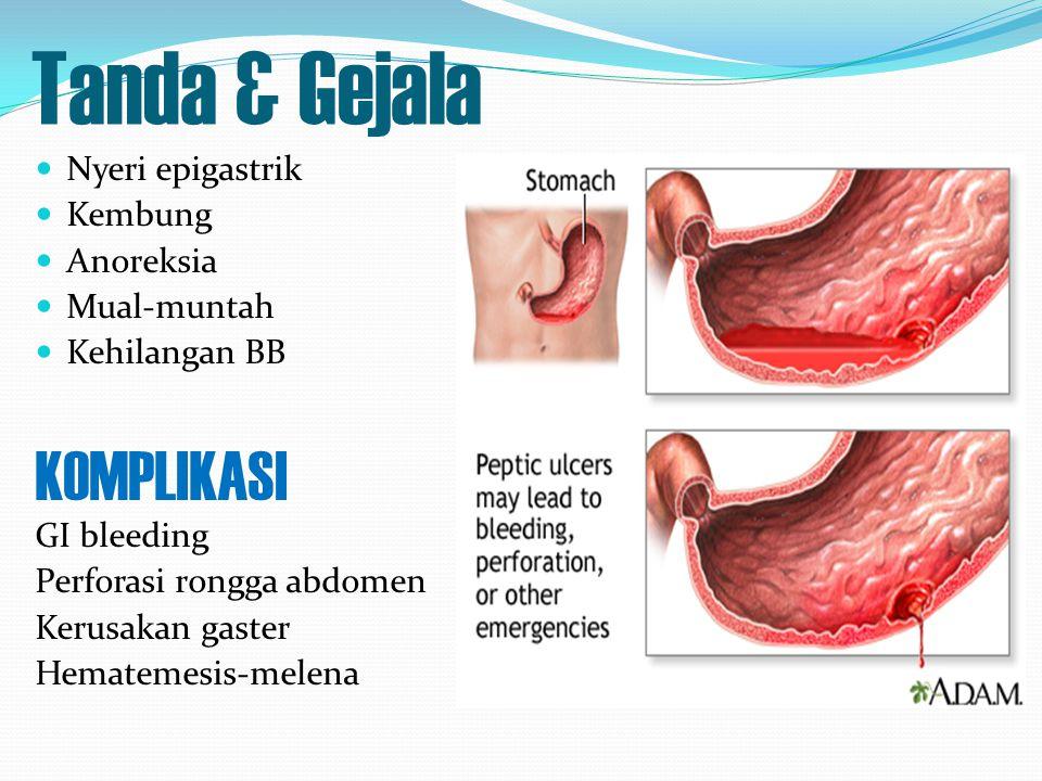 Tanda & Gejala KOMPLIKASI Nyeri epigastrik Kembung Anoreksia