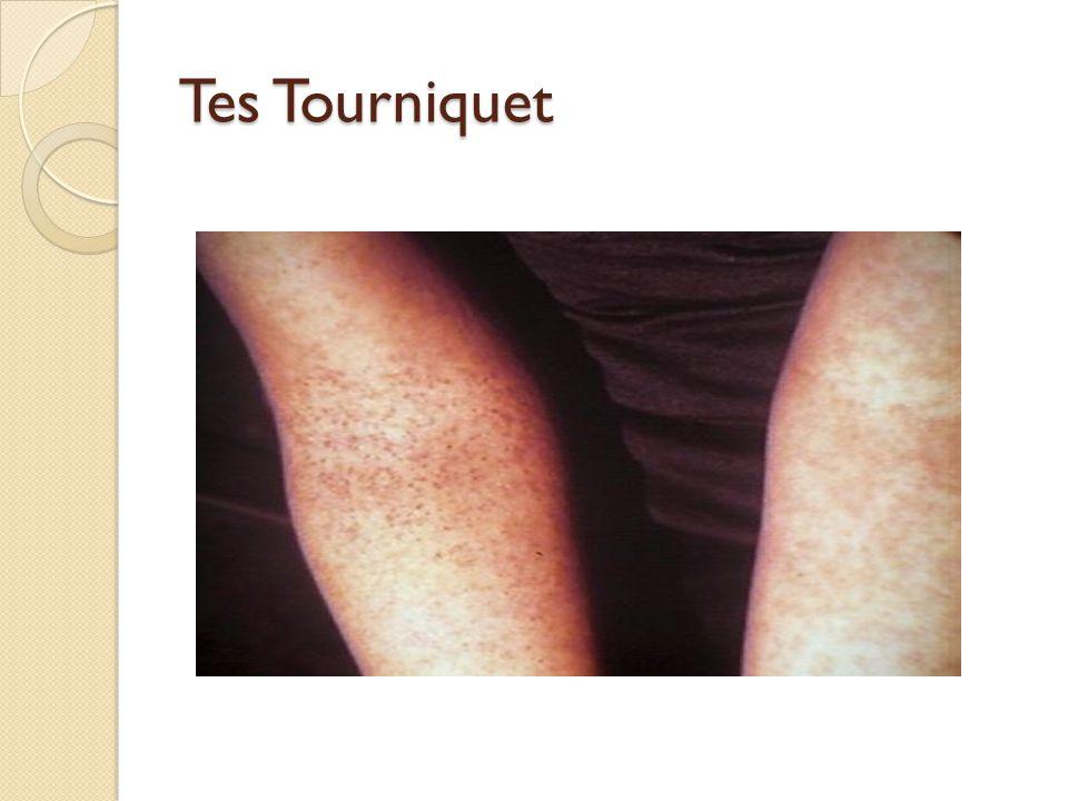 Tes Tourniquet