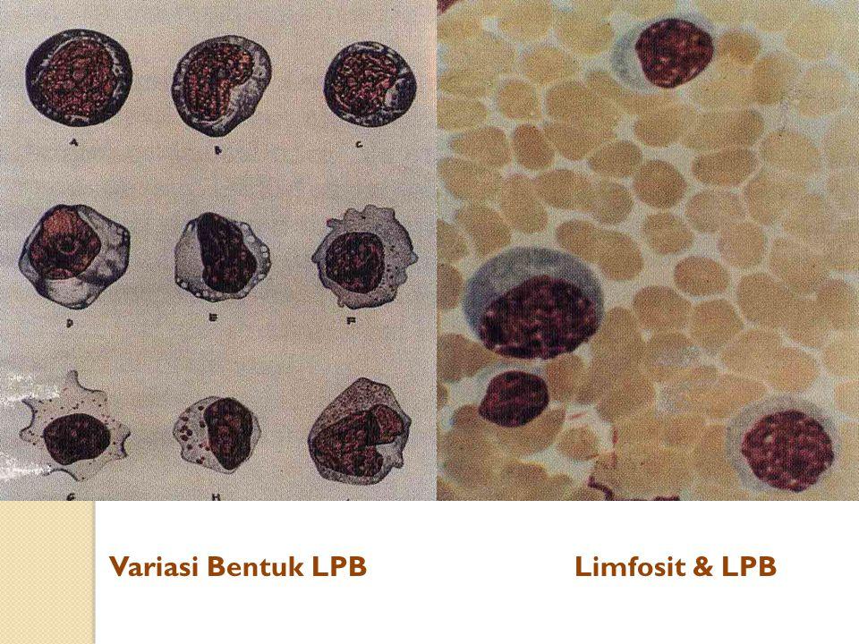 Variasi Bentuk LPB Limfosit & LPB