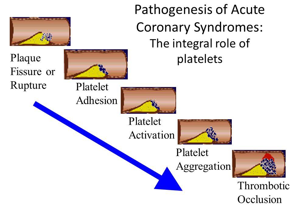 Pathogenesis of Acute Coronary Syndromes: The integral role of platelets