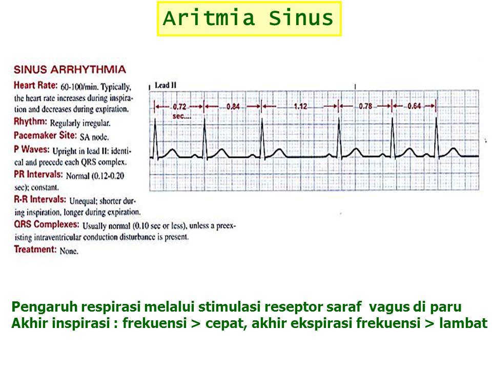 Aritmia Sinus Pengaruh respirasi melalui stimulasi reseptor saraf vagus di paru.