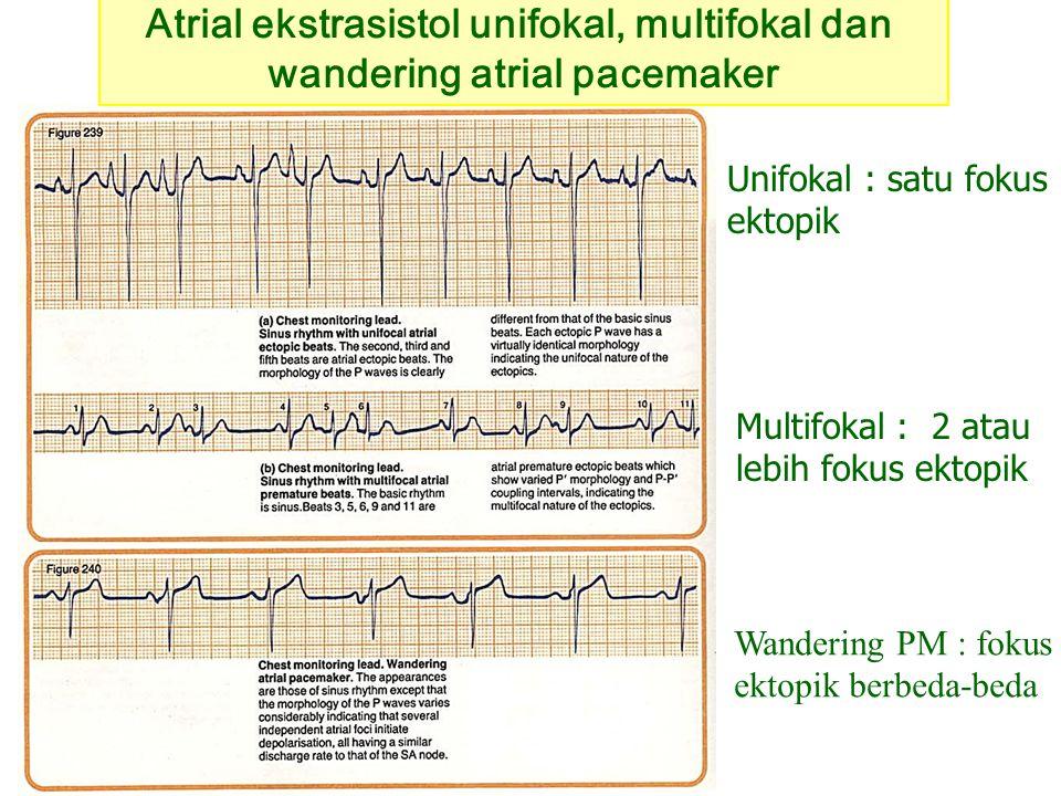 Atrial ekstrasistol unifokal, multifokal dan