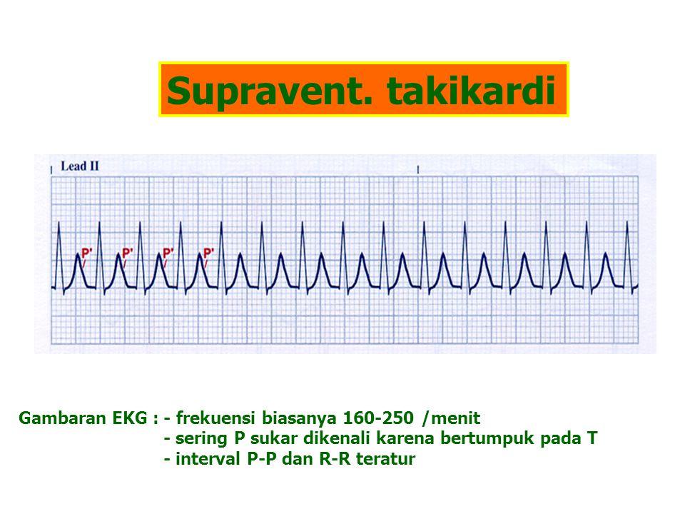 Supravent. takikardi Gambaran EKG : - frekuensi biasanya 160-250 /menit. - sering P sukar dikenali karena bertumpuk pada T.