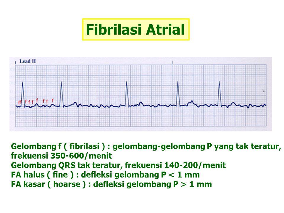 Fibrilasi Atrial Gelombang f ( fibrilasi ) : gelombang-gelombang P yang tak teratur, frekuensi 350-600/menit.