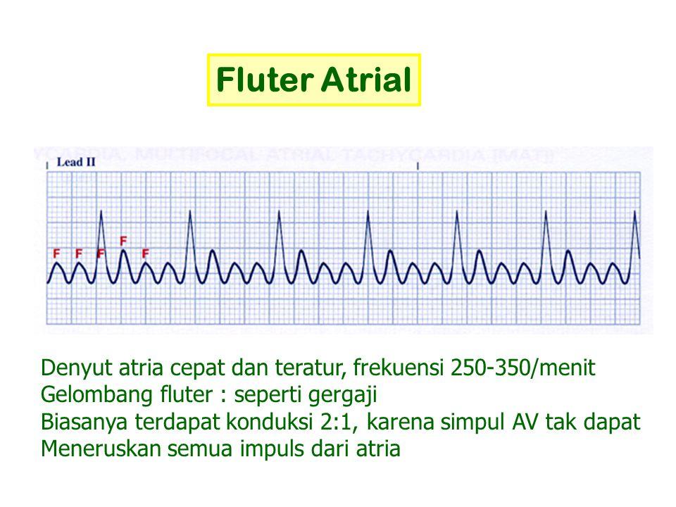 Fluter Atrial Denyut atria cepat dan teratur, frekuensi 250-350/menit