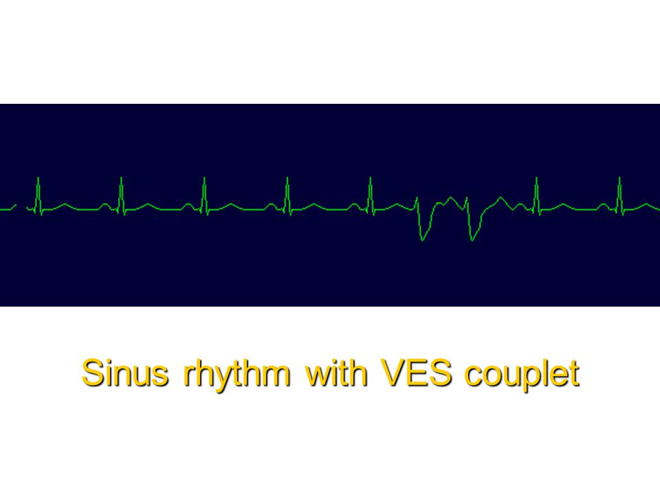 Sinus rhythm with VES couplet