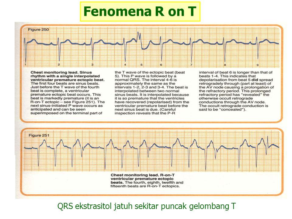 QRS ekstrasitol jatuh sekitar puncak gelombang T