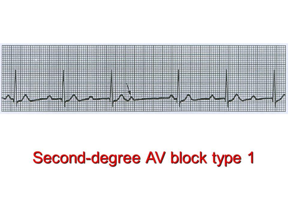 Second-degree AV block type 1