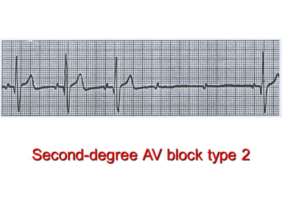 Second-degree AV block type 2