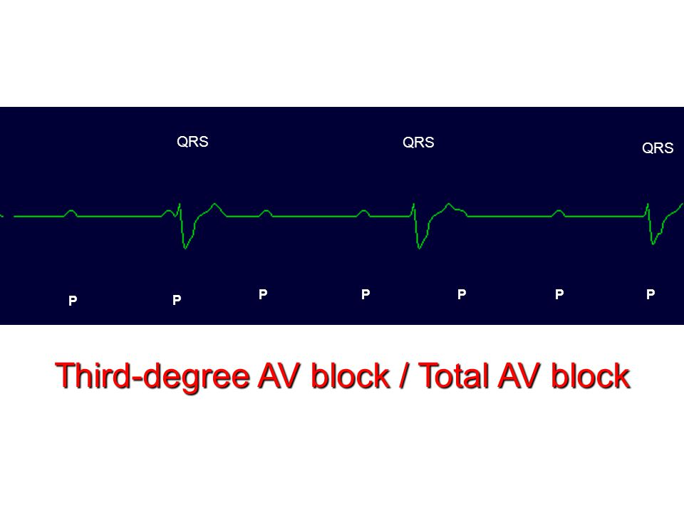 Third-degree AV block / Total AV block